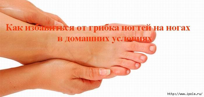 """alt=""""Как избавиться от грибка ногтей на ногах в домашних условиях  """"/2835299__2_ (700x334, 113Kb)"""