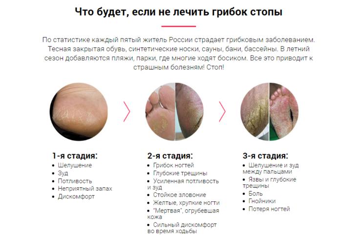 """alt=""""������ ����� � ��� � ��� ��������""""/2835299_Gribok_stopi_i_kak_s_nim_borotsya (700x484, 187Kb)"""