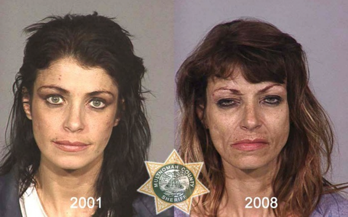 Наркотики   зло. Фотографии наркоманов из полицейского архива