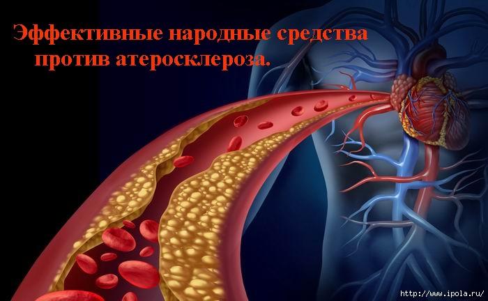 """alt=""""Эффективные народные средства против атеросклероза.""""/2835299_ (700x432, 157Kb)"""