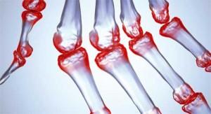 revmatoidnyj-artrit-300x163 (300x163, 17Kb)