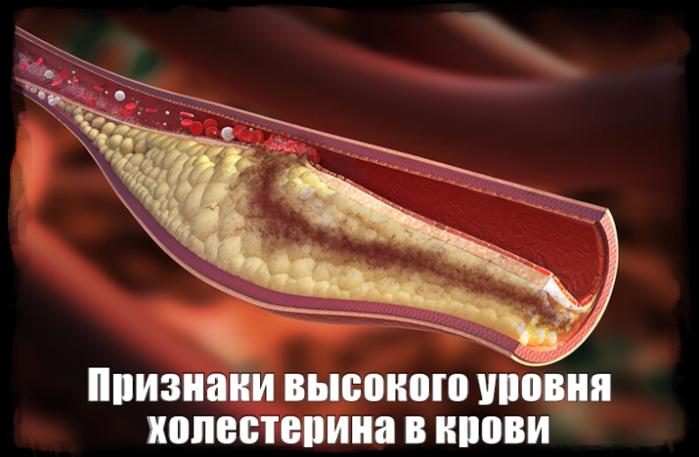 "alt=""Признаки высокого уровня холестерина в крови""/2835299_Priznaki_visokogo_yrovnya_holesterina_v_krovi (700x457, 394Kb)"