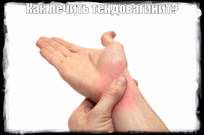 "alt=""Как лечить тендовагинит?""/2835299__6_ (700x464, 230Kb)"