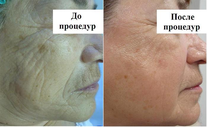 mezoterapia (700x429, 267Kb)