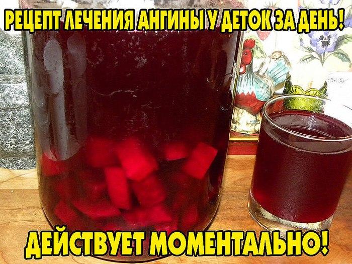 2749438_Kak_bistro_vilechit_anginy_y_rebenka (700x525, 120Kb)