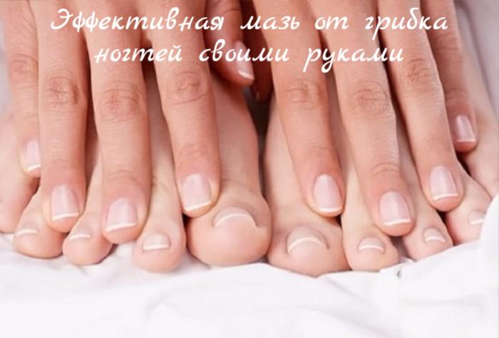 "alt=""����������� ���� �� ������ ������ ������ ������""/2835299_Effektivnaya_maz_ot_gribka_nogtei_svoimi_rykami (700x474, 356Kb)"