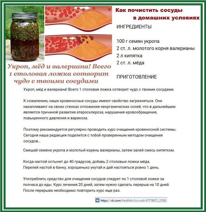 Лечение в домашних условиях сосуды
