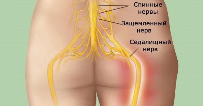 Лечение седалищного нерва народными средствами/4565333_131696x364696x364 (696x364, 35Kb)