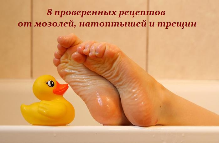 2749438_8_proverennih_receptov_ot_mozolei_natoptishei_i_treshin (700x459, 352Kb)