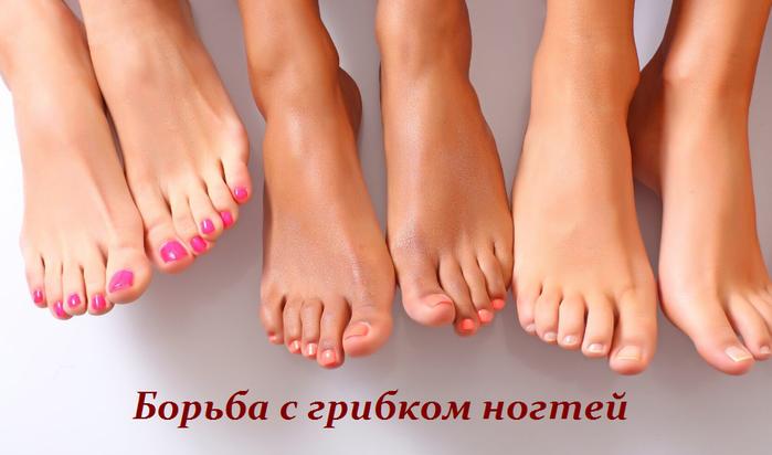 2749438_Borba_s_gribkom_nogtei (700x412, 327Kb)