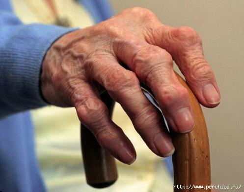 артрит коленного сустава лечение народными средствами форум