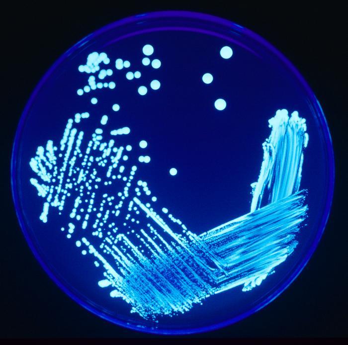 Ученые: Кондиционеры оказались опасными для здоровья из-за легионелл и грибков