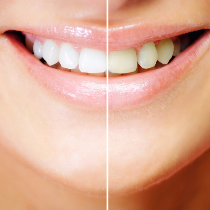 1363684091_teeth-whitening-results2 (1) (700x700, 378Kb)