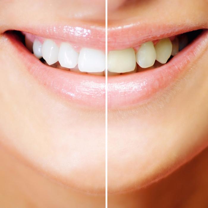 Чем можно очистить зубы от желтого налета