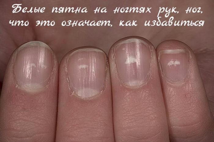 """alt=""""Белые пятна на ногтях рук, ног, что это означает, как избавиться""""/2835299_Belie_pyatna_na_nogtyah_ryk_nog_chto_eto_oznachaet_kak_izbavitsya (700x467, 392Kb)"""