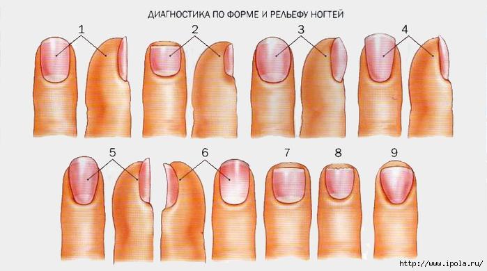 """alt=""""О чём могут говорить изменения в ногтевых пластинах?""""/2835299_O_chyom_mogyt_govorit_izmeneniya_v_nogtevih_plastinah (700x390, 165Kb)"""