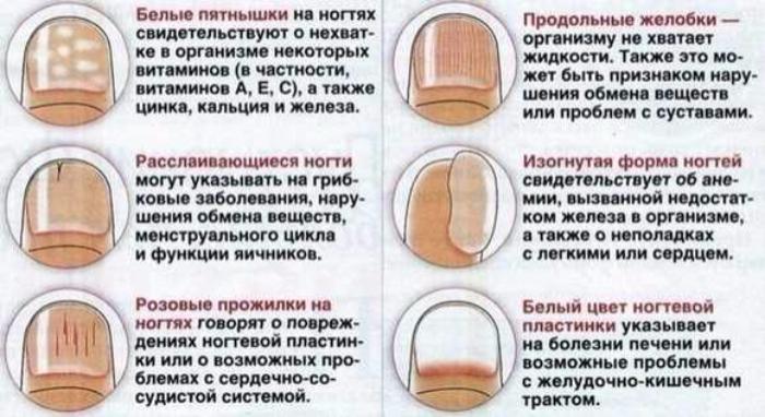 """alt=""""О чём могут говорить изменения в ногтевых пластинах?""""/2835299_zagryjennoe_2_ (700x382, 477Kb)"""