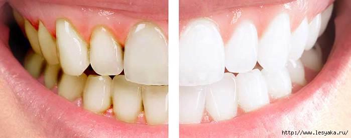 3925073_dentalcare11 (700x276, 69Kb)