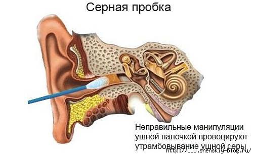 4121583_sernayaprobka (502x309, 69Kb)