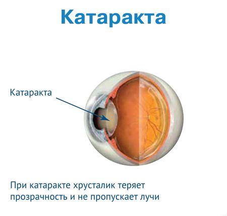 катаракта (450x428, 22Kb)