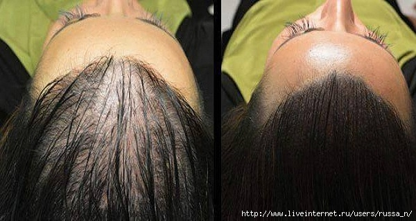 Magic-Recipe-For-Fastest-Hair-Growth-Naturaly-All-Are-Surprised-By-The-Results--- (600x320, 139Kb)