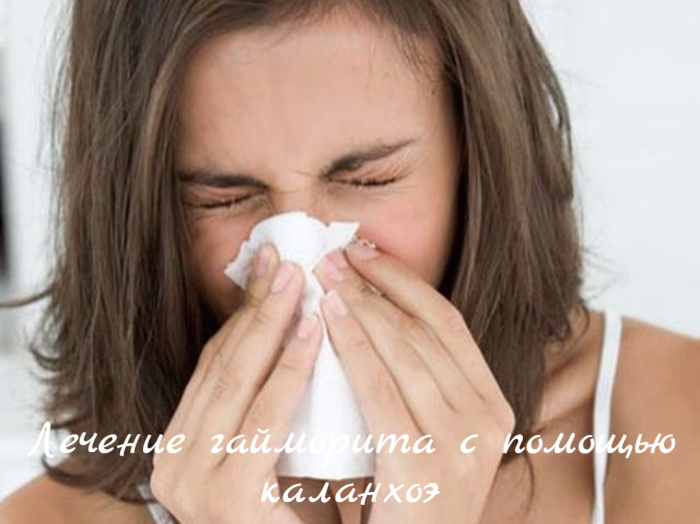 "alt=""Лечение гайморита с помощью каланхоэ""/2835299_ (700x524, 525Kb)"