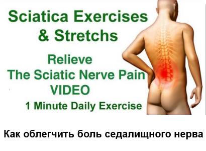 Как облегчить боль седалищного нерва