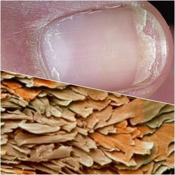 Грязь под ногтями микроскопом