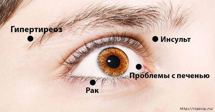 5745884_Zabolevaniya_glaz (700x365, 162Kb)