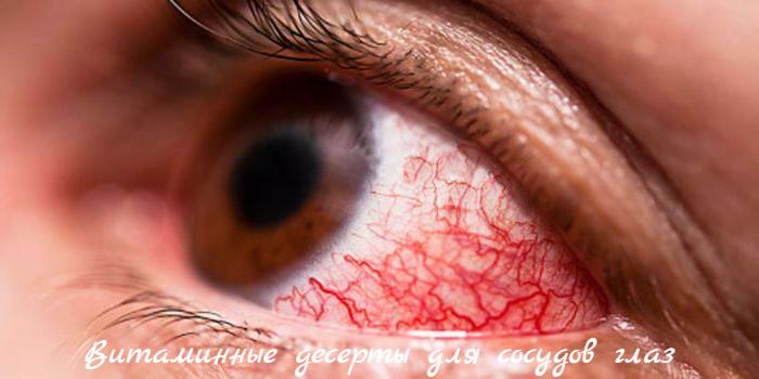 """alt=""""Витаминные десерты для сосудов глаз""""/2835299__4_ (700x350, 392Kb)"""