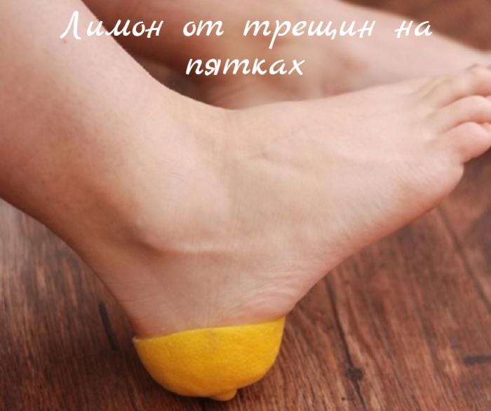 "alt=""Лимон от трещин на пятках""/2835299_Limon_ot_treshin_na_pyatkah (700x586, 517Kb)"