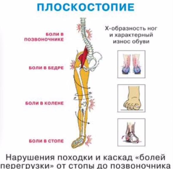 """alt=""""Чем опасно плоскостопие и упражнения от него""""/2835299_Chem_opasno_ploskostopie_i_yprajneniya_ot_nego (590x574, 303Kb)"""