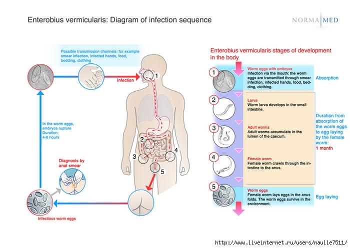 4869548_csm_schema_enterobius_vermicularis_infectionsequences_416314aa98 (700x497, 170Kb)