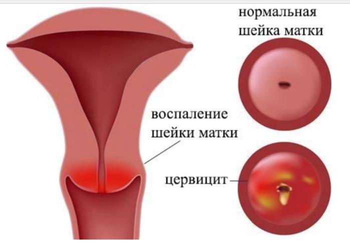Воспалительный процесс на шейке матки как лечить
