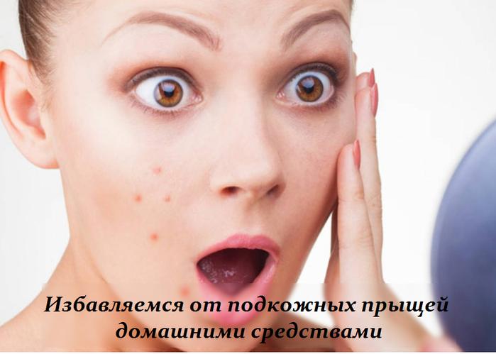 2749438_Izbavlyaemsya_ot_podkojnih_prishei_domashnimi_sredstvami (700x499, 329Kb)