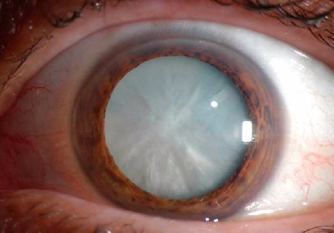 cataract (670x467, 207Kb)