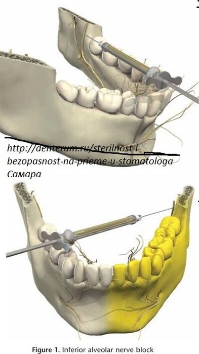 Шатается зуб после удаления нерва