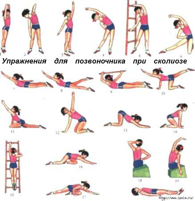 Как бороться с сутулостью спины