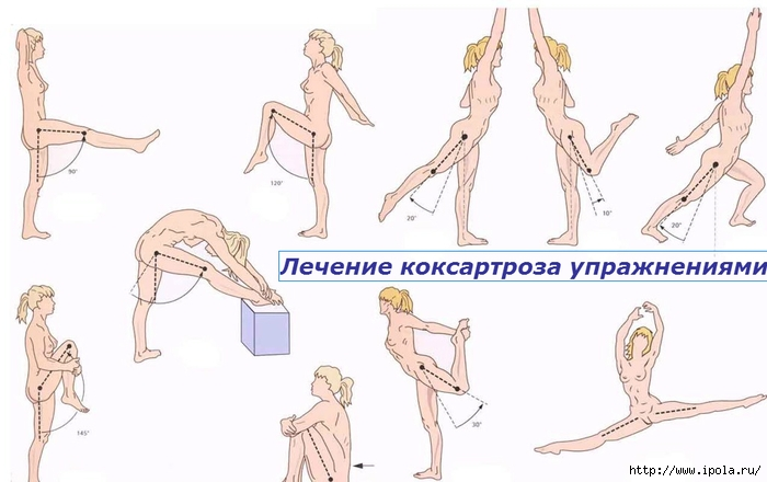 "alt=""Лечение коксартроза упражнениями""/2835299_Lechenie_koksartroza_yprajneniyami (700x440, 155Kb)"