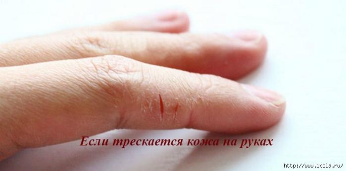 """alt=""""Если трескается кожа на руках""""/2835299_Esli_treskaetsya_koja_na_rykah (700x347, 124Kb)"""