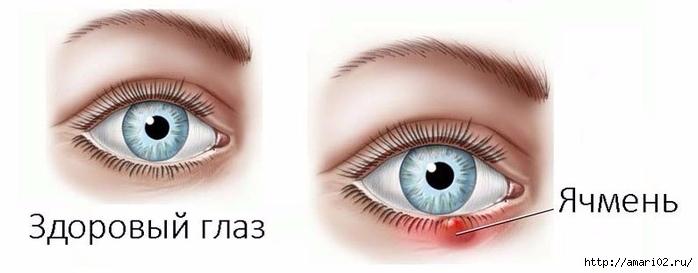 yachmen-na-glazu-prichiny-poyavleniya-i-lechenie (700x273, 98Kb)