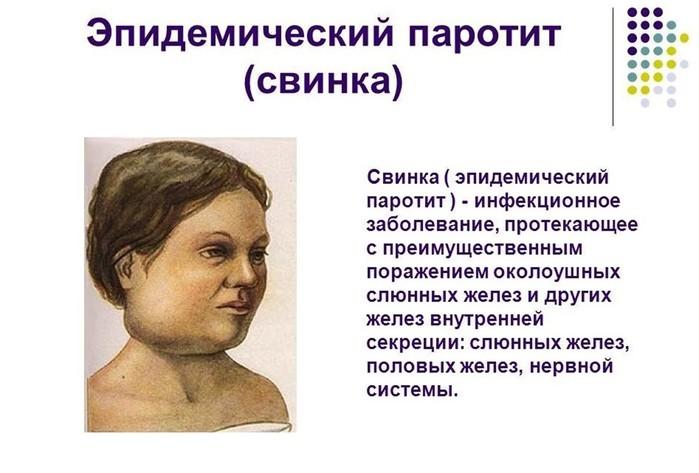 Детские заболевания, которые тяжело переносятся во взрослом возрасте