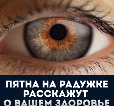 Диагностика по глазам (474x441, 383Kb)