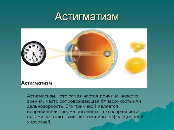wpid-0007-007-Astigmatizm (700x525, 218Kb)