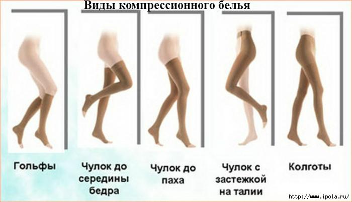 "alt=""Компрессионное бельё при варикозном расширении вен""/2835299_Kompressionnoe_belyo_pri_varikoznom_rasshirenii_ven_1_ (700x403, 144Kb)"