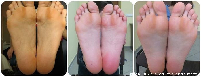 Инструкция как носить педикюрные носочки/6210208_kak_nosit_pedikurnie_nosochki (700x268, 104Kb)