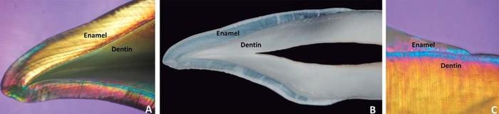 Что намазать на зубы, чтобы они не выпали?