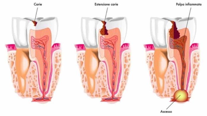 kista-na-korne-zuba-lechenie-narodnymi-sredstvami-1 (700x393, 173Kb)