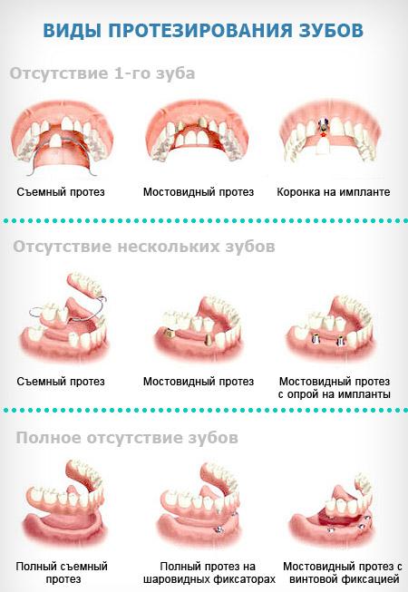 protezirovanie_zubov_0 (450x653, 183Kb)