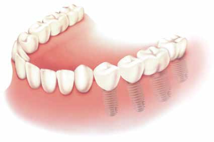 protezirovanie-zubov-7 (425x282, 26Kb)